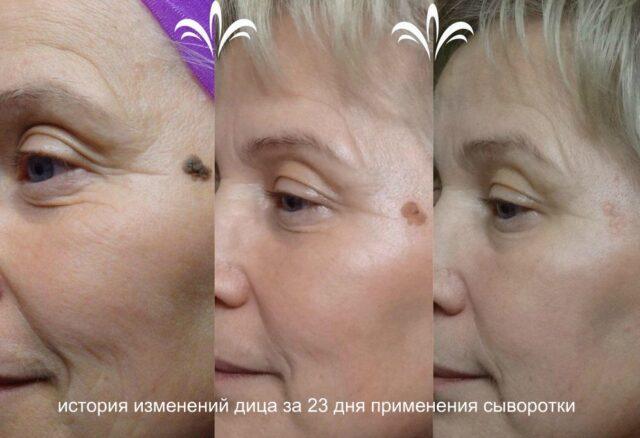 фото до и после применения сыворотки luminesce